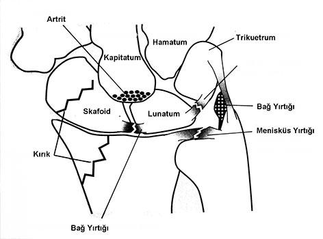 El Bileği artroskopisi