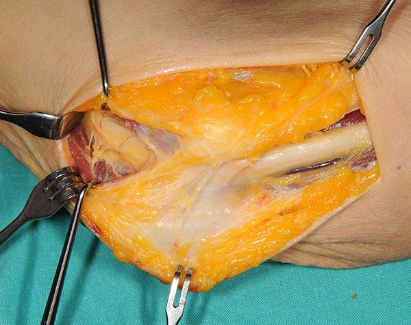 kubital-tunel-sendromu-ulnar-sinir-tedavisi