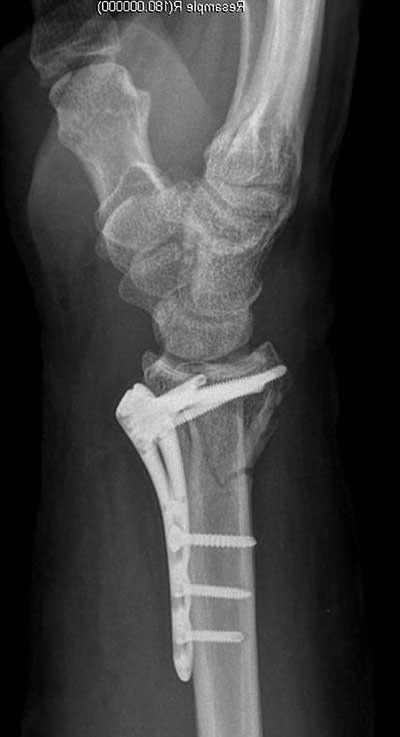 El bileği kırıkları röntgen filmi