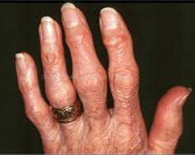 osteoartrit-belirtileri-nedir
