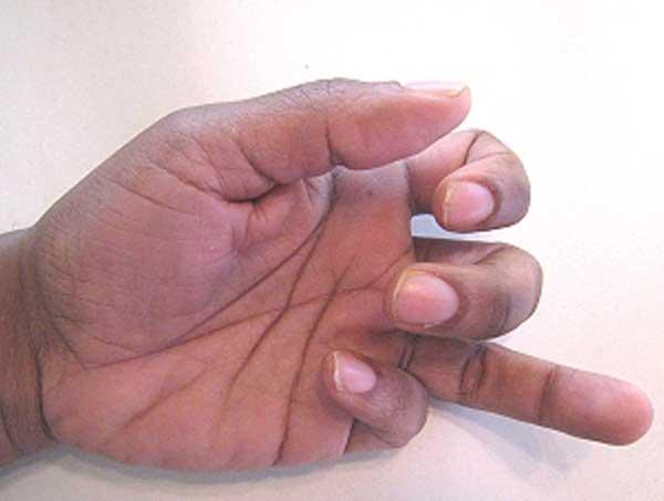 fleksör tendon yırtılmaları