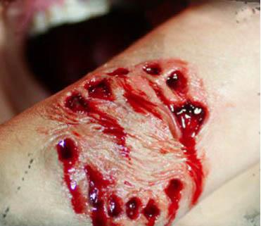 Isırık yaralanması - Hayvan Isırığı