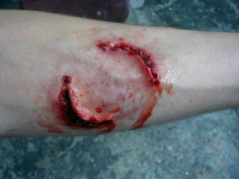 Isırık yaralanması - İnsan Isırığı