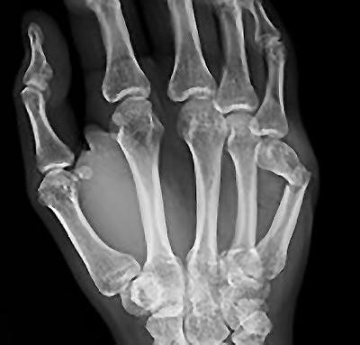 Boksör Kırığı Röntgen Görüntüsü